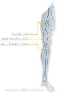 Vein Treatment Skypoint Medical