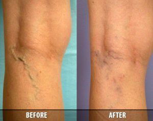 Vein Therapy Skypoint Medical