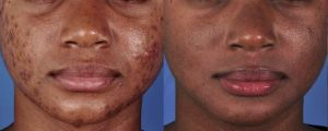 Acne Treatment Schaumburg Skypoint Medical