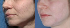 Acne Scarring Schaumburg Skypoint Medical