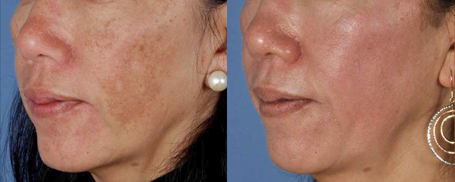 Hyperpigmentation Skypoint Medical