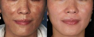 Hyperpigmentation Schaumburg Skypoint Medical